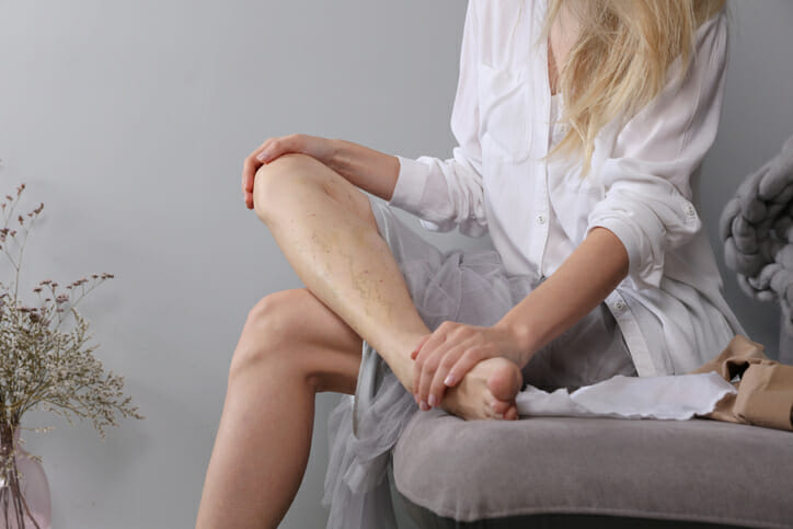How Summer Heat Affects Your Varicose Veins