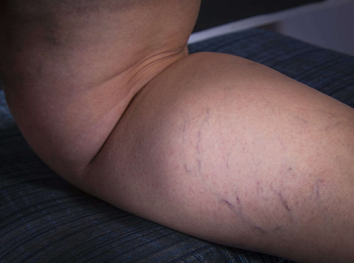 remove Varicose veins at home